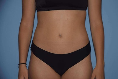 Liposuction Gallery - Patient 6389655 - Image 2
