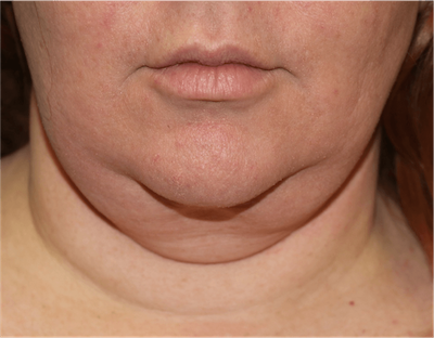 Liposuction Gallery - Patient 6389656 - Image 1