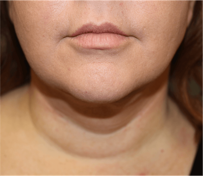 Liposuction Gallery - Patient 6389656 - Image 2
