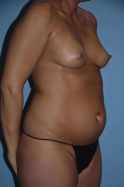 Liposuction Gallery - Patient 6389657 - Image 1