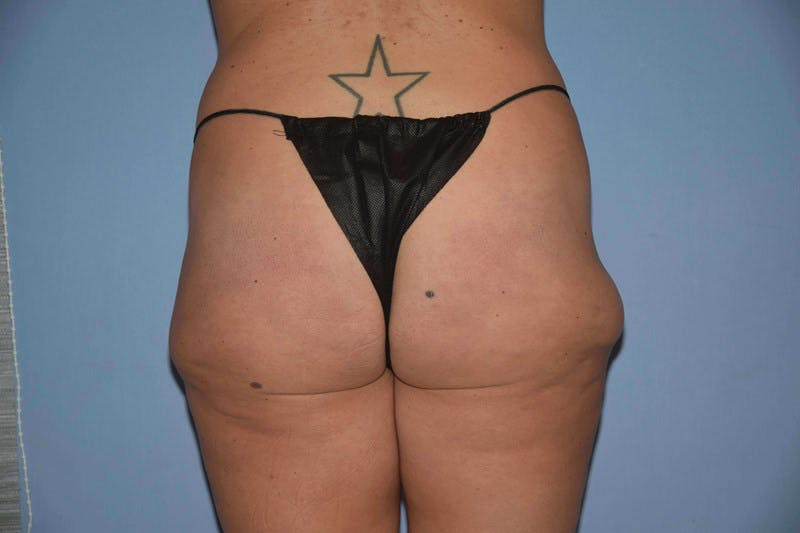 Liposuction Gallery - Patient 6389661 - Image 1