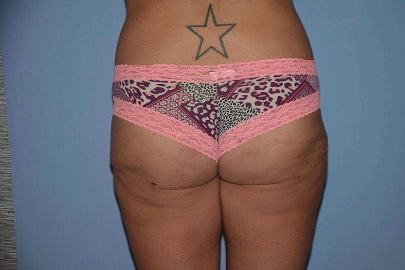 Liposuction Gallery - Patient 6389661 - Image 2