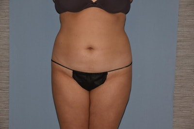 Liposuction Gallery - Patient 6389665 - Image 1