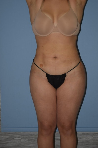 Liposuction Gallery - Patient 6389665 - Image 2
