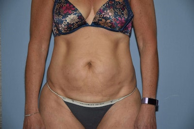 Tummy Tuck Gallery - Patient 6389672 - Image 1