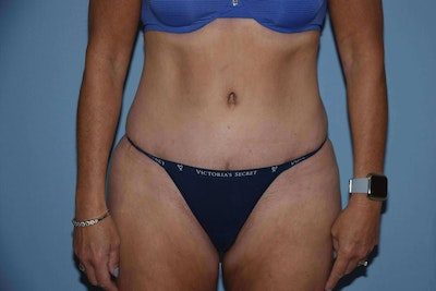 Tummy Tuck Gallery - Patient 6389672 - Image 2
