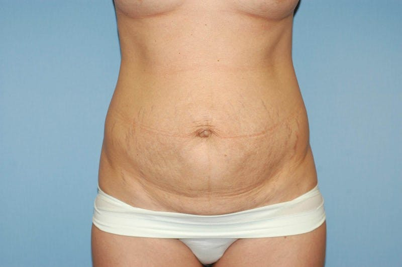 Tummy Tuck Gallery - Patient 6389675 - Image 1