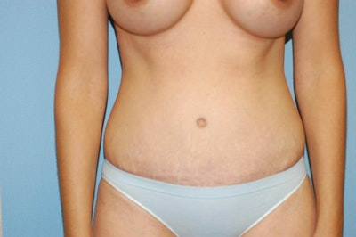 Tummy Tuck Gallery - Patient 6389675 - Image 2