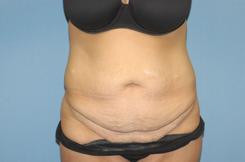 Tummy Tuck Gallery - Patient 6389677 - Image 1
