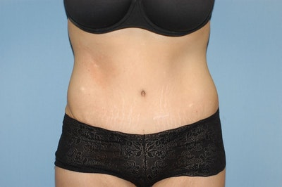 Tummy Tuck Gallery - Patient 6389677 - Image 2