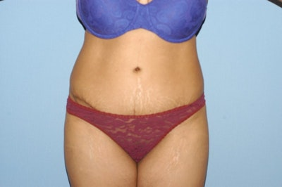 Tummy Tuck Gallery - Patient 6389678 - Image 2