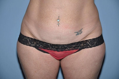 Tummy Tuck Gallery - Patient 6389679 - Image 1