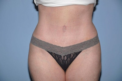 Tummy Tuck Gallery - Patient 6389679 - Image 2