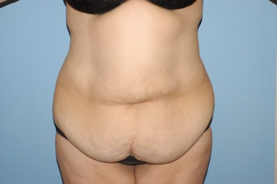 Tummy Tuck Gallery - Patient 6389681 - Image 1