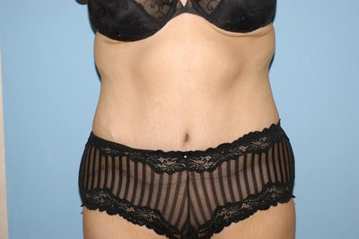 Tummy Tuck Gallery - Patient 6389681 - Image 2