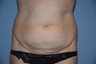 Tummy Tuck Gallery - Patient 6389682 - Image 1