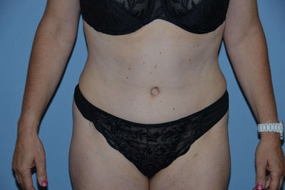 Tummy Tuck Gallery - Patient 6389682 - Image 2