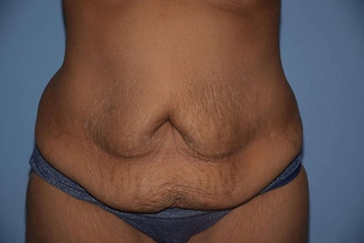 Tummy Tuck Gallery - Patient 6389683 - Image 1