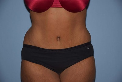 Tummy Tuck Gallery - Patient 6389683 - Image 2
