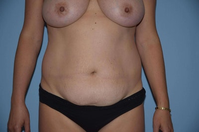 Tummy Tuck Gallery - Patient 6389686 - Image 1