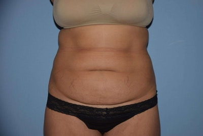 Tummy Tuck Gallery - Patient 6389687 - Image 1