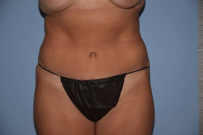Tummy Tuck Gallery - Patient 6389687 - Image 2