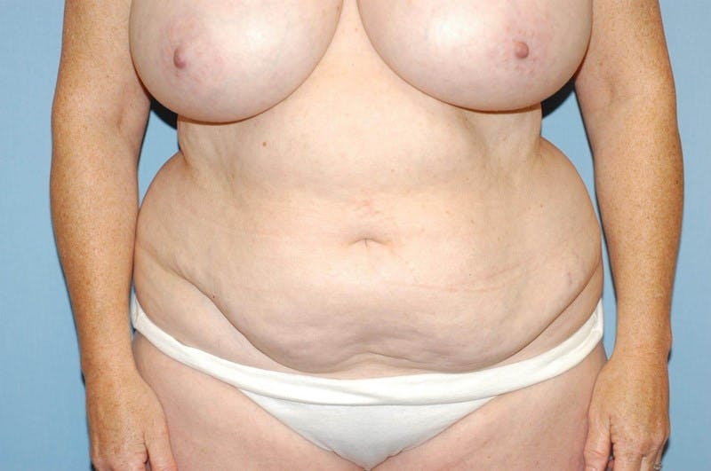 Tummy Tuck Gallery - Patient 6389688 - Image 1