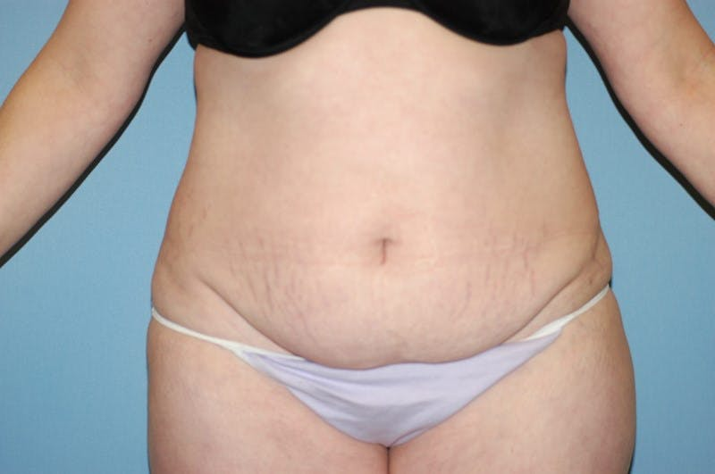 Tummy Tuck Gallery - Patient 6389689 - Image 1