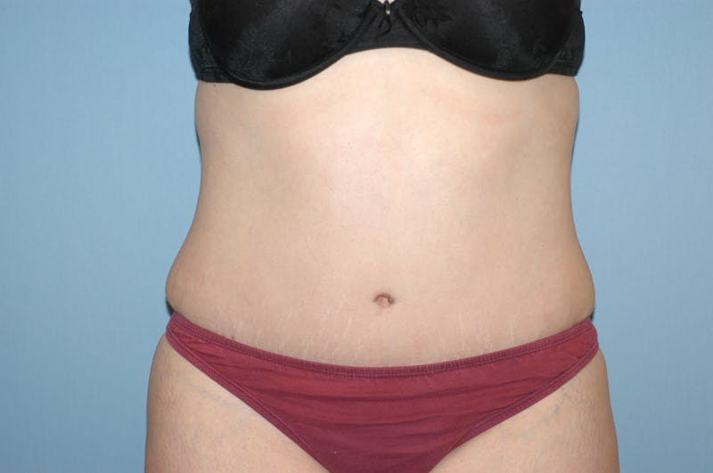 Tummy Tuck Gallery - Patient 6389689 - Image 2