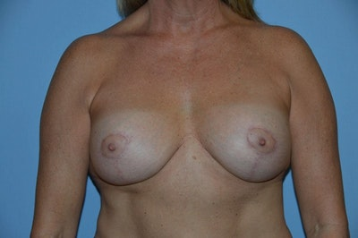 Breast Implant Removal Gallery - Patient 6389693 - Image 1