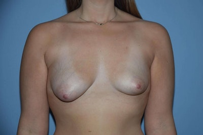 Breast Asymmetry Gallery - Patient 6389694 - Image 1