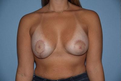 Breast Asymmetry Gallery - Patient 6389694 - Image 2