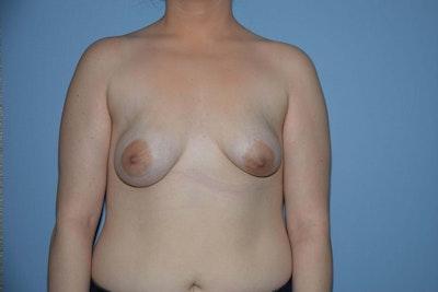 Breast Asymmetry Gallery - Patient 6389695 - Image 1