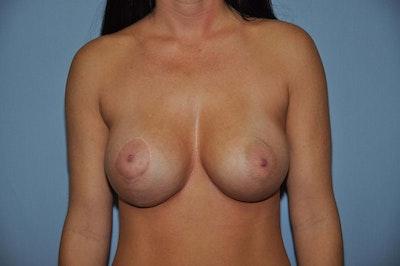 Breast Asymmetry Gallery - Patient 6389698 - Image 2