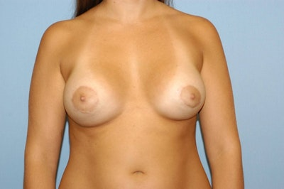 Breast Asymmetry Gallery - Patient 6389699 - Image 2