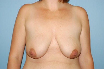 Breast Lift Gallery - Patient 6389700 - Image 1