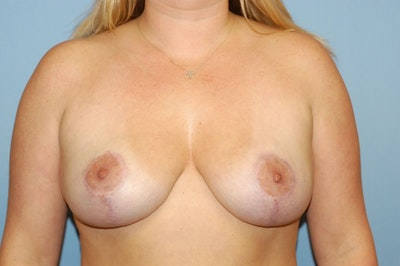 Breast Lift Gallery - Patient 6389700 - Image 2