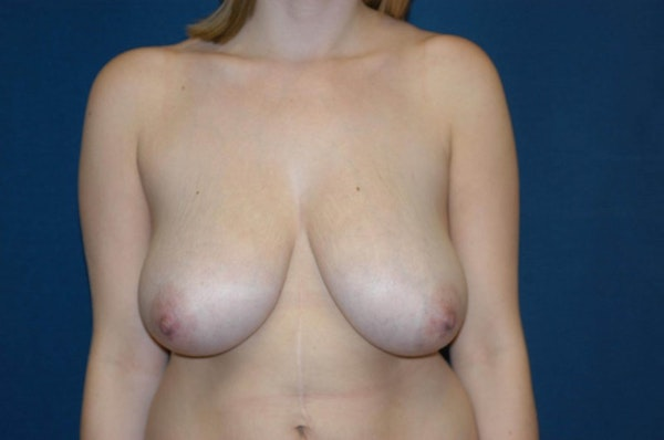 Breast Lift Gallery - Patient 6389701 - Image 1