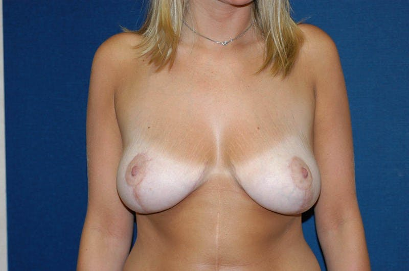 Breast Lift Gallery - Patient 6389701 - Image 2