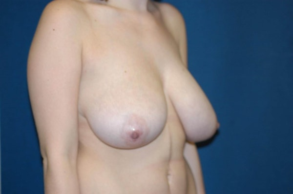 Breast Lift Gallery - Patient 6389701 - Image 3