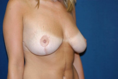 Breast Lift Gallery - Patient 6389701 - Image 4