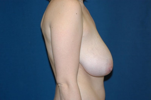 Breast Lift Gallery - Patient 6389701 - Image 5