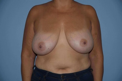 Breast Lift Gallery - Patient 6389702 - Image 1