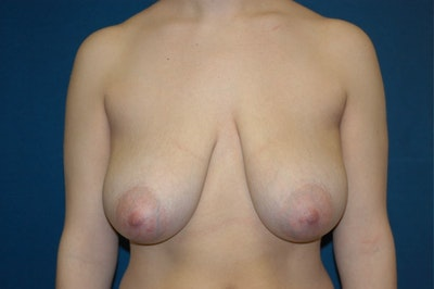 Breast Lift Gallery - Patient 6389703 - Image 1