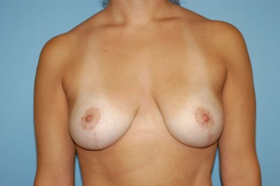 Breast Lift Gallery - Patient 6389703 - Image 2