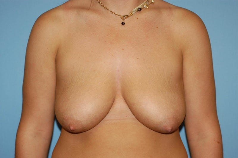 Breast Lift Gallery - Patient 6389704 - Image 1