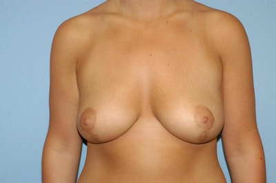 Breast Lift Gallery - Patient 6389704 - Image 2