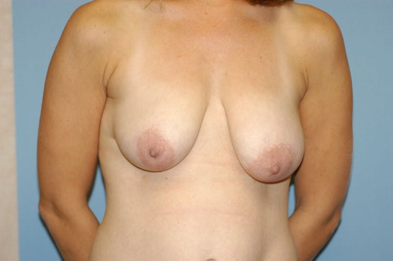 Breast Lift Gallery - Patient 6389705 - Image 1