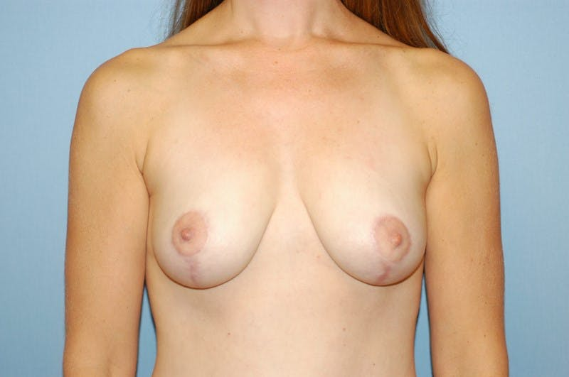 Breast Lift Gallery - Patient 6389705 - Image 2