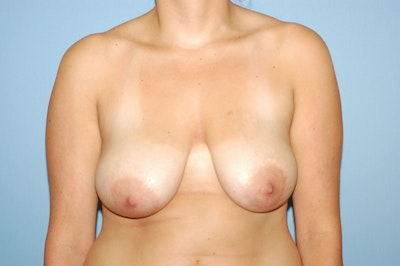 Breast Lift Gallery - Patient 6389706 - Image 1